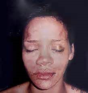 Rhianna beaten up